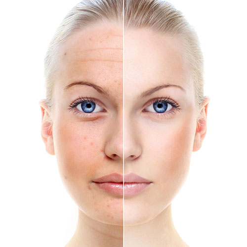 cosmeticbotox02